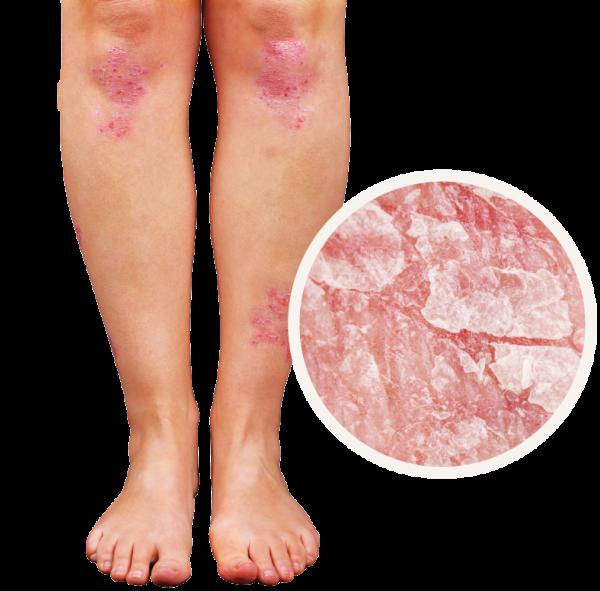 Psoriaz Dermatologiya